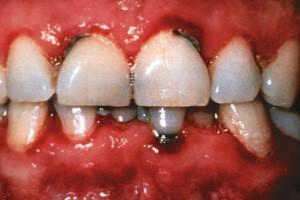 Диагностика и лечение язвенно-некротического гингивита Венсана в острой и хронический форме