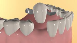 Особенности реплантации зубов, показания и противопоказания к процедуре, этапы операции