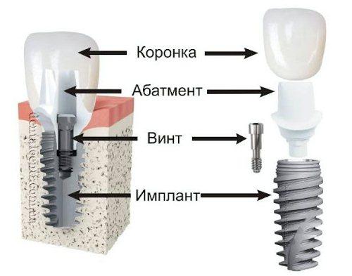 Имплантация зубов: двух и одноэтапная, отличия от протезирования