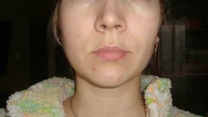Опухла и болит щека после удаления зуба: сколько держится отек и что делать, чтобы снять опухоль?