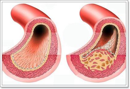 Атеросклероз сосудов головного мозга и нижних конечностей