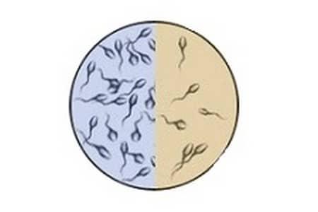 Нормальная концентрация сперматозоидов и патология