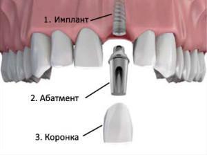 Абатмент при имплантации в стоматологии: изготовление индивидуальных конструкций и процесс установки