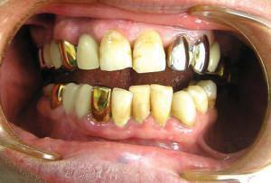 Симптомы и лечение гальваноза (гальванических явлений) в полости рта