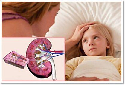 Пиелонефрит: его виды, пути заражения, симптоматика и лечение