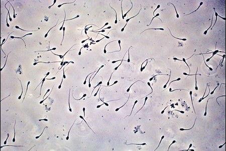 Сперма под микроскопом