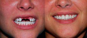 Как выглядят протезы бабочка во рту при отсутствии 1-2 зубов: фото до и после микропротезирования