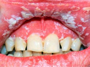 Как проявляется ВИЧ-инфицирование в полости рта фото язв и налета на языке
