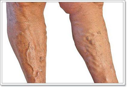 Варикоз у мужчин на ногах: причины появления