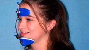 Классификация ортодонтических конструкций: аппараты механического, функционального и комбинированного действия с фото