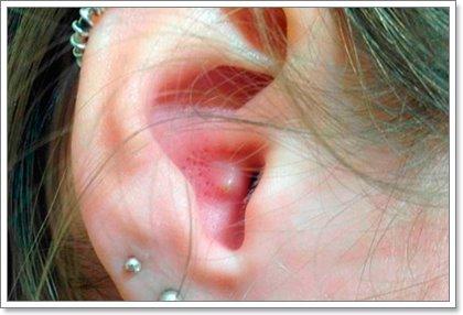 Угри в ушах: все варианты избавления