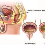 Что такое гиперплазия простаты (фото)