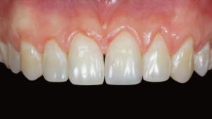 Сколько молочных и постоянных зубов должно быть у ребенка и взрослого человека?