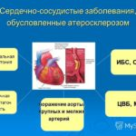 Сос удистые заболевания