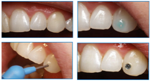 Способы декорирования зубов скайсами в виде бриллианта или страз: как происходит установка?
