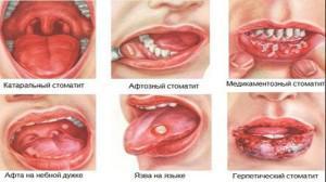 Болячки и язвы на слизистой рта у взрослых: фото, причины появления и лечение ранок в домашних условиях