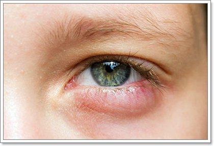 Укус мошки в область глаза: как снять отек и зуд?