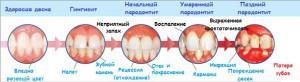 Классификация и особенности заболеваний пародонта, профилактика и лечение воспалений околозубных тканей