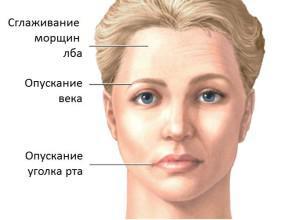 Невралгия воспаление лицевого нерва: причины, симптомы заболевания и методы лечения невропатии