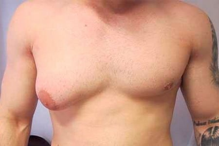 Одна увеличенная грудь у мужчины