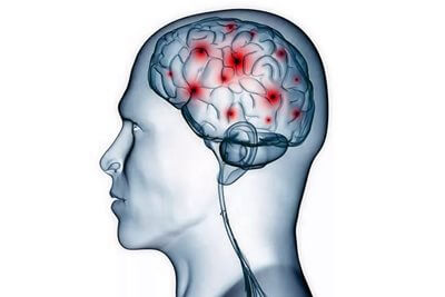 Чистка сосудов мозга (часть 2)