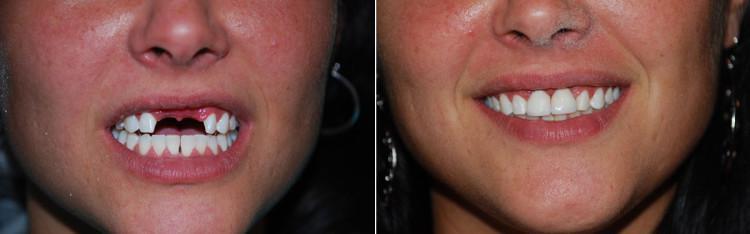 Зубы до протезирования и после: фото вставных протезов и варианты замены золотые или пластмассовые и керамические?