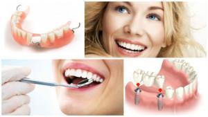 Этапы и последовательность протезирования зубов хирургическая подготовка полости рта