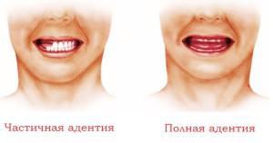 Имплантация зубов (с фото поэтапно, до и после): виды, технологии установки имплантов и альтернативы