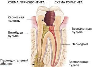 Симптомы и способы лечения периапикального абсцесса со свищем или без полости