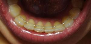 Что такое ретейнер: как ставят пластину после брекетов и сколько времени ее нужно носить на зубах?