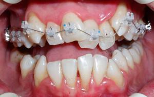 До какого возраста детям можно выравнивать зубы брекетами и стоит ли их ставить взрослому после 30 лет?