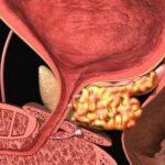 Рак предстательной железы на фото