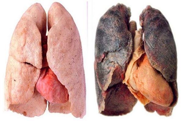 Чистка лёгких курильщика: народные средства и медицина