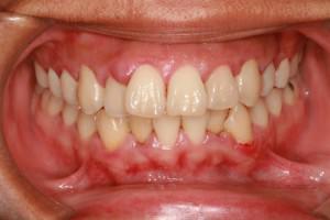 Почему у взрослого и ребенка вокруг зуба на десне может появиться черная точка?