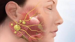 Почему может болеть язык по бокам, чем лечить покалывание: причины неприятных ощущений и средства от дискомфорта во рту