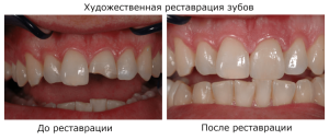 Что такое художественная реставрация кривых передних зубов фото до и после восстановления коронковой части