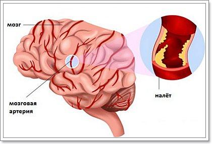 Цереброваскулярные заболевания тревожные симптомы