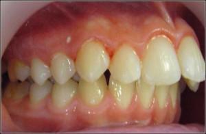 Артикуляция (центральная, передняя или боковая окклюзия) и виды прикуса в стоматологии