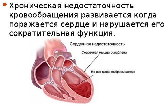 Жизнь с сердечной недостаточностью: виды болезни и лечение