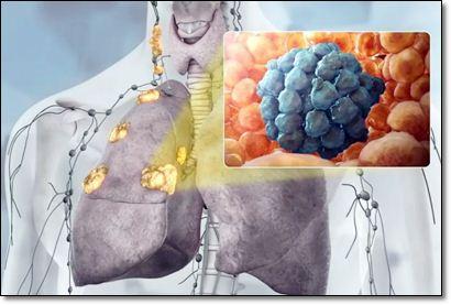 Рак легких: как распознать тревожные и потенциальные симптомы