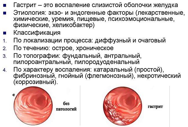 Гастриты: разновидности, диагностика, лечение и профилактика