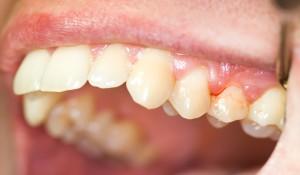 Симптомы воспаления корня зуба: что делать и как лечить в домашних условиях?