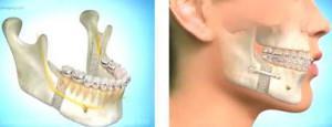 Исправление неправильного прикуса хирургическим путем когда показана остеотомия нижней или верхней челюсти?