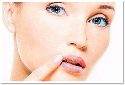 Простуда и герпес на губах – лечим снаружи и изнутри