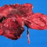 Фото кисты предстательной железы