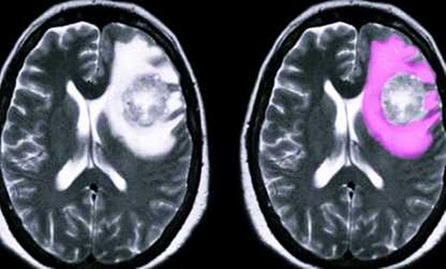 Отек головного мозга: причины и способы лечения патологии