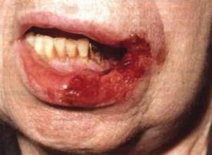 Проявления туберкулеза слизистой оболочки полости рта и языка фото симптомов и лечение