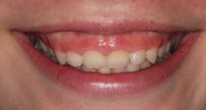 Как исправить десневую улыбку: устранение проблемы с помощью подрезания, коррекции ботоксом с фото до и после