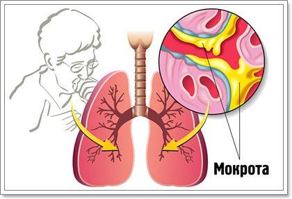8 причин появления мокроты и симптомы возможных заболеваний