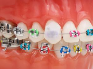 Использование ортодонтического защитного воска для брекетов: зачем нужен, как правильно наносить на систему?
